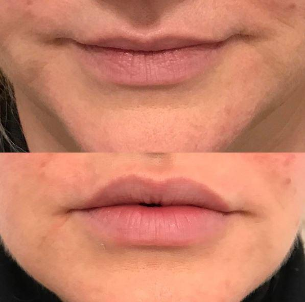 Lip Enhancements by Juvederm Sutton Coldfield Birmingham