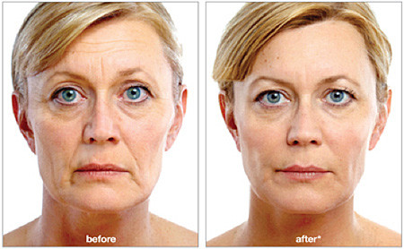 Juvederm 8 Point Facelift - Liebe Aesthetics - Sutton Coldfield