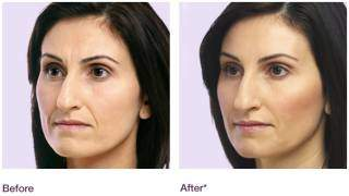 Juvederm 8 Point Facelift - Liebe Aesthetics -Birmingham