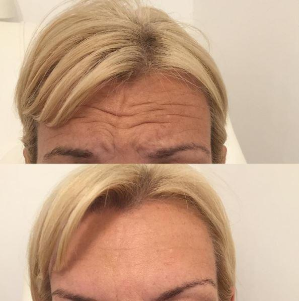 botox injections sutton coldfield