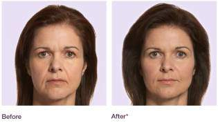 Juvederm 8 Point Facelift - Liebe Aesthetics - West Midlands